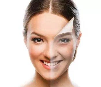 Skin tightening with Infini RF treatments in Beaverton Area