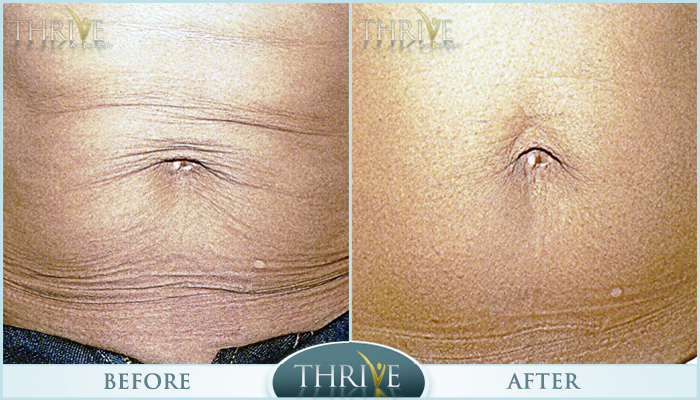 Lift & Tighten Skin Before and After 05