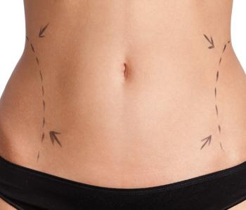 Anti-aging center near Tigard offers non-invasive body contour solutions