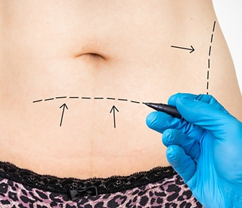 "Portland residents ask ""Is a non-surgical skin tightening procedure safe?"""