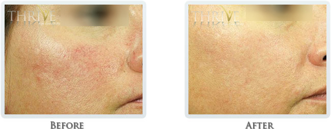Rosacea & Redness Reduction Before and After 03