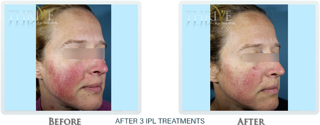 Rosacea & Redness Reduction Before and After 02