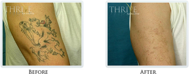 Tattoo Removal Before and After 02