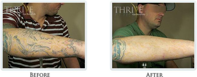 Tattoo Removal Before and After 01