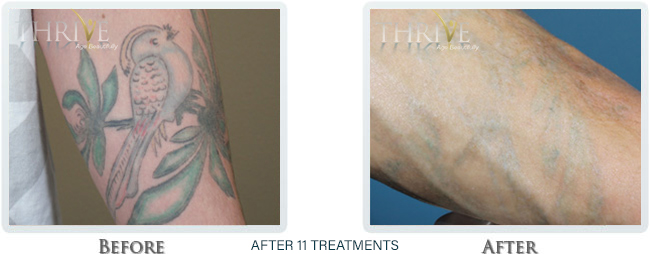 Tattoo Removal Before and After 11