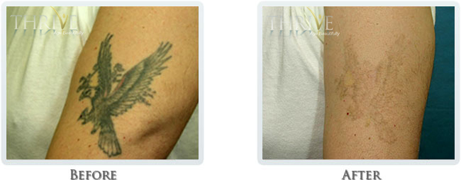 Tattoo Removal Before and After 04