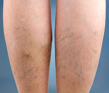 Comparing laser therapy to other types of vascular treatment