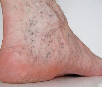 Trust your vascular specialists in Portland for varicose and spider vein treatments