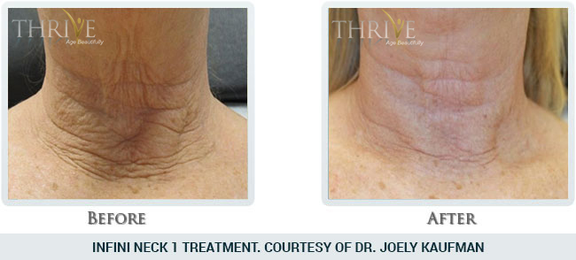 Wrinkle Reduction Before and After 05