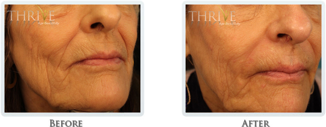 Wrinkle Reduction Before and After 03