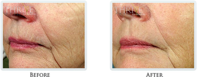 Wrinkle Reduction Before and After 02