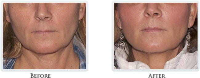 Non Surgical Facelift Before and After 11