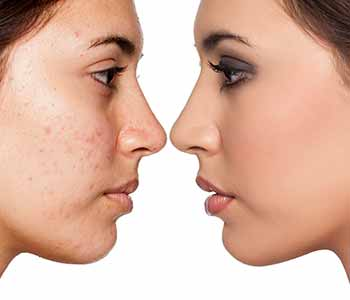Acne is a frustrating and embarrassing problem for many people