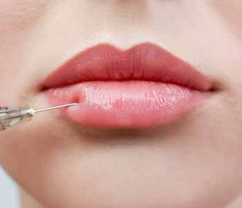 In pursuit of the perfect pout: your guide to lip augmentation with dermal fillers in Portland, OR