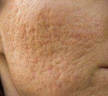 Lutronic Infini Portland, OR (RF Microneedling) - Safe Skin
