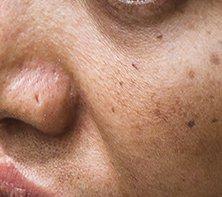 Poor Skin Texure