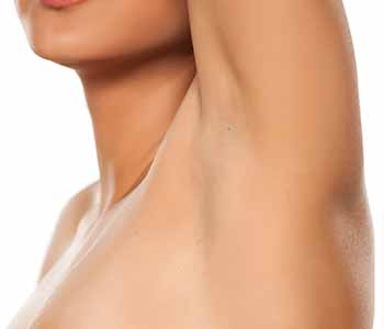 Minimally-invasive miraDry treatment for excessive sweating brings immediate, permanent results.