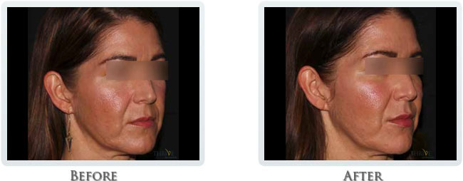 Volbella, Voluma and Vollure - Dermal Fillers