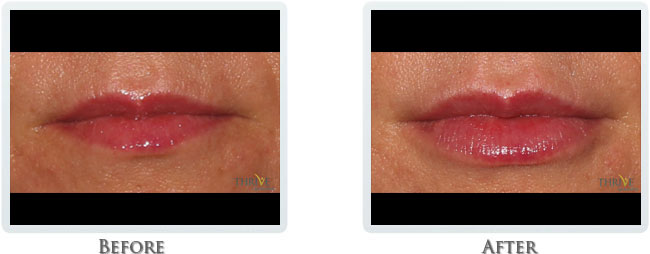 Vollure and Volbella - Dermal Fillers for Lips