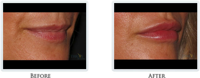 Juvederm - Dermal Filler for Lips