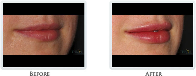 Juvederm Plus - Dermal Filler for Lips
