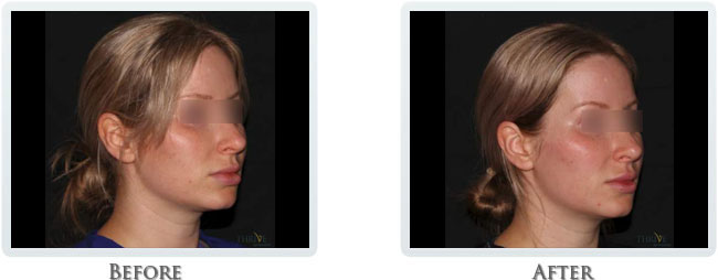 Nova Thread and Volbella - Non-Surgical Facelift