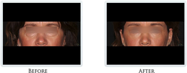Revanesse Versa - Dermal Fillers for Under Eyes