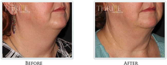 Kybella and Exilis - Lift & Tighten Skin on Neck