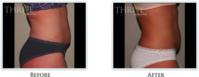 Vanquish, Exilis and Cellutone - Fat Removal _ Body Contouring for Abdoman