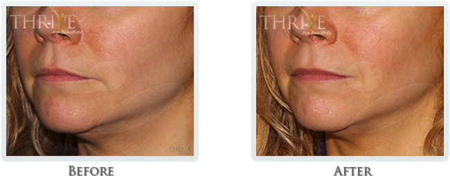 Exilis - Lift & Tighten Skin on Face