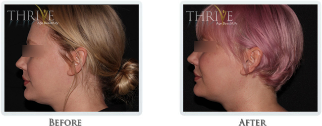 KYBELLA /LIFT & TIGHTEN SKIN / FAT REMOVAL