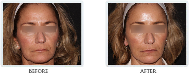 Lift & Tighten Skin Before and After 12