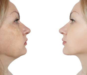 In Portland area Kybella Treatment to Melt Your Double Chin