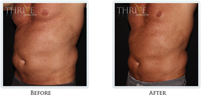 Non-Invasive Body Sculpting - Image 3