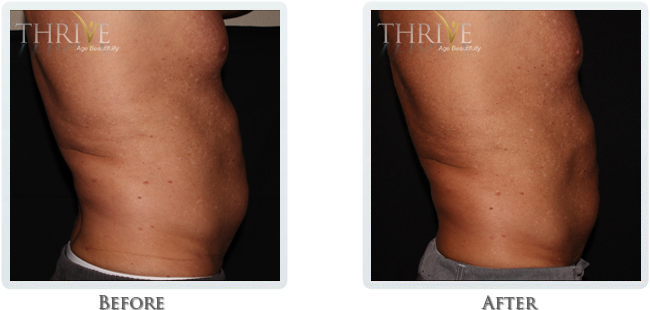 Non-Invasive Body Sculpting - Image 4