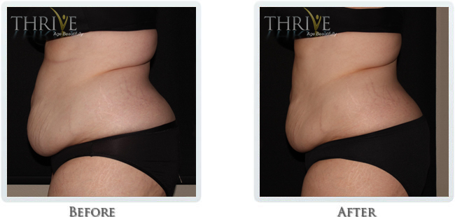 Non-Invasive Body Sculpting - Image 6