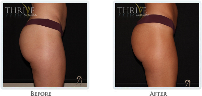 Non-Invasive Body Sculpting - Image 9